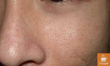 「毛孔变大了还能恢复么」毛孔怎么变小